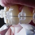 Hübsch anzusehen: Zahnspangen-Alternativen für Erwachsene und Jugendliche